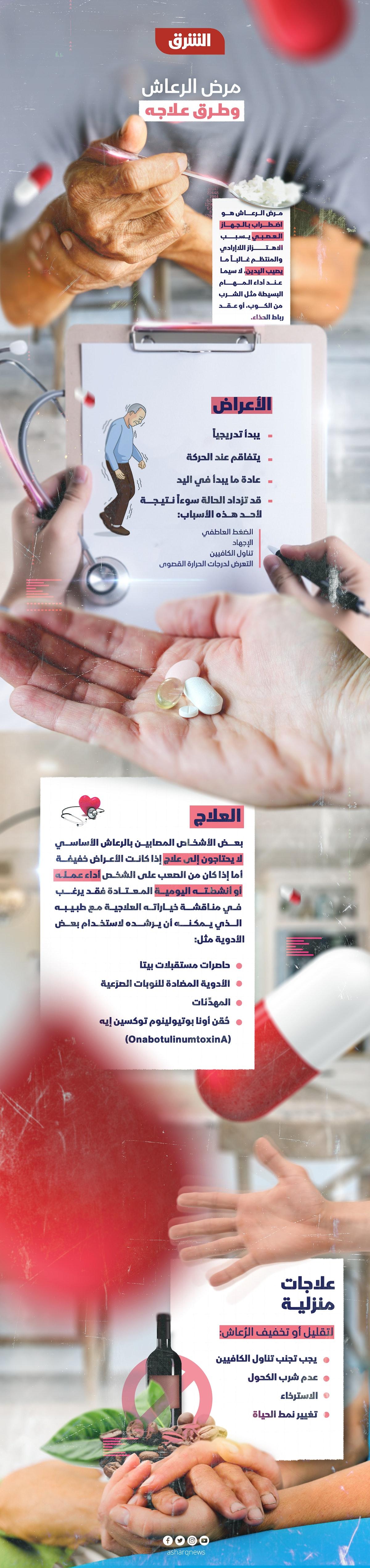 معلومات عن مرض الشلل الرعاش - الشرق